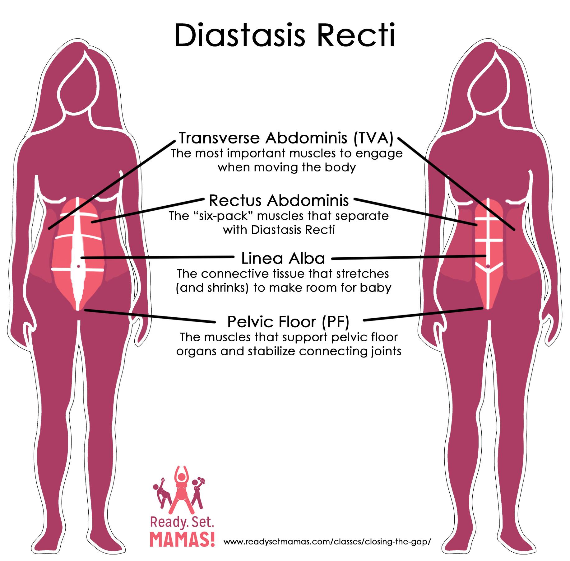 Pregnancyprenatal and postnatal pilates education pregnancy pilates diastasis recti diagram ccuart Images