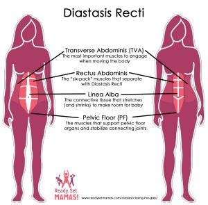 Pregnancy Pilates Diastasis Recti Diagram