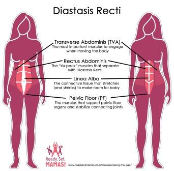 Pregnancy Pilates Diastasis Recti Diagram